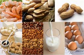 Food allergies-sensitivities